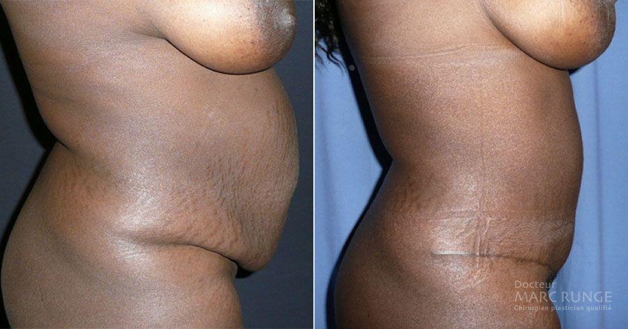 Photos d'une abdominoplastie avant et après par Dr Runge, chirurgien esthétique à Paris et Beauvais (Oise)