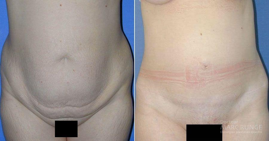 Photos avant et après de la plastie abdominale par Dr Runge, chirurgien esthétique Paris et Beauvais (Oise)