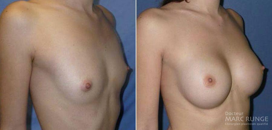 Augmentation mammaire à Paris, Photo avant et après l'opération réalisée par le Dr Marc Runge
