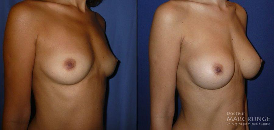 Photos du traitement de l'hypotrophie mammaire par augmentation mammaire - Dr Runge