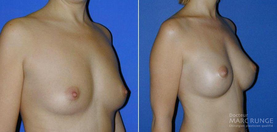 Photo des seins d'après l'augmentation mammaire réalisée par le Dr Runge, chirurgien esthétique renommé à Pairs et Beauvais (Oise)