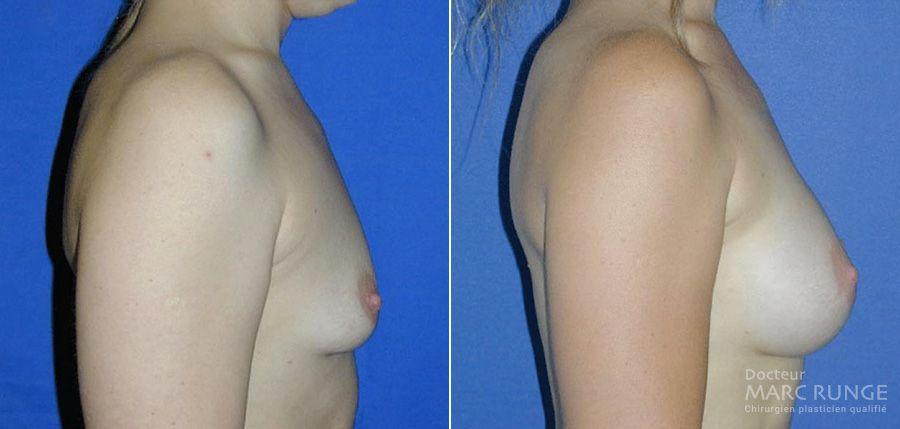 L'opération d'une augmentation mammaire en photos avant et après par le Dr Runge, chirurgien esthétique à Paris et Beauvais (Oise)