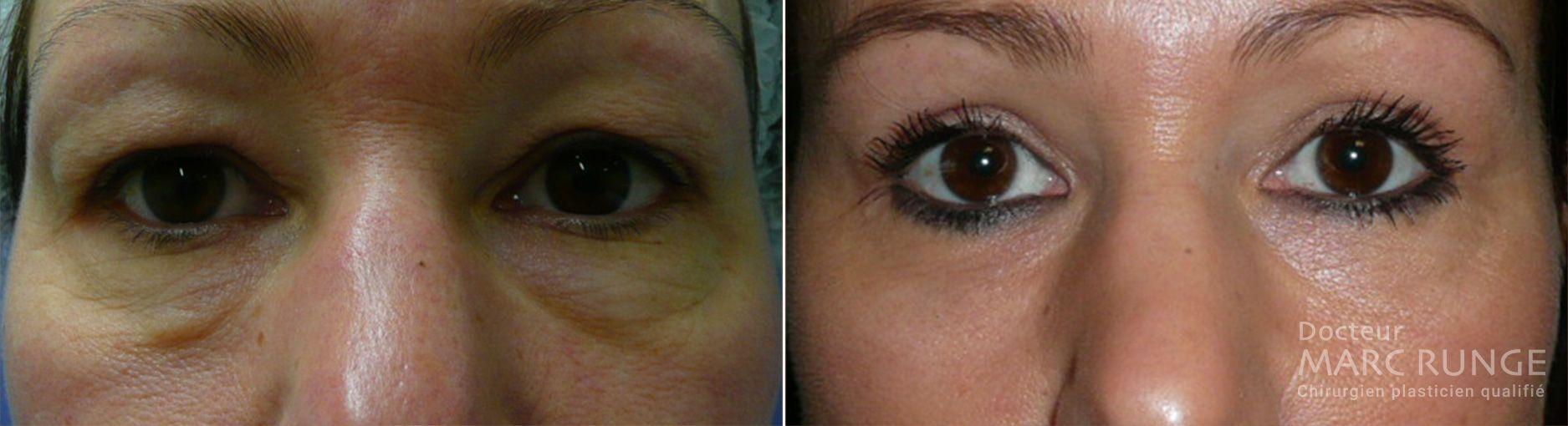 Photo d'avant et d'après l'opération des paupières (blépharoplastie), réalisée par Dr Runge, médecin et chirurgien esthétique à Paris et Beauvais (Oise)