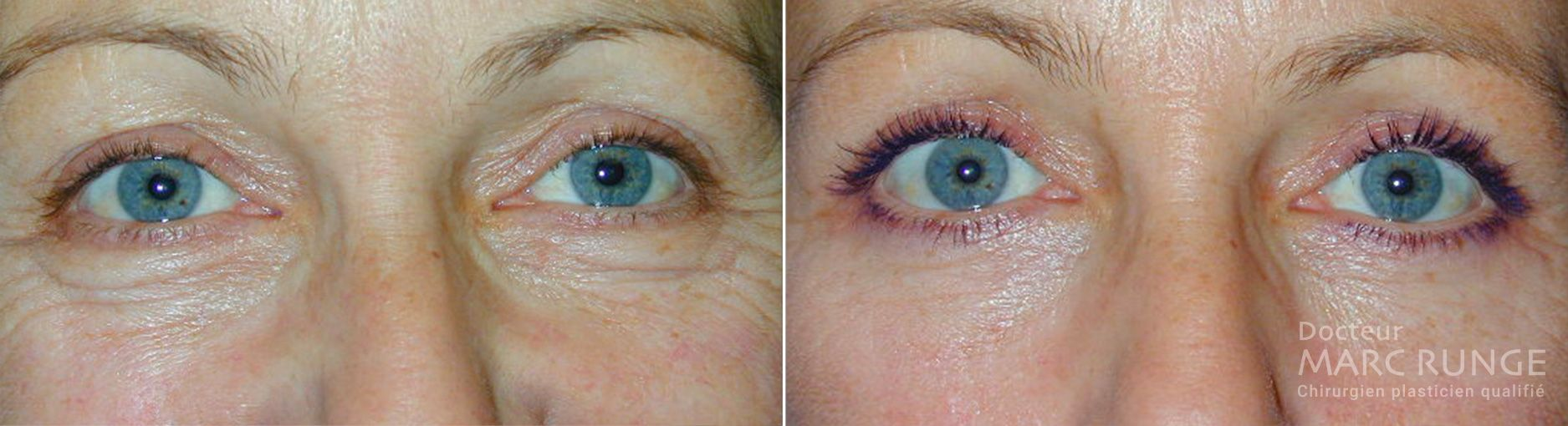 Photo de la paupière inférieure avant et après la blépharoplastie réalisée à Paris par Dr Runge, médecin et chirurgien esthétique à Paris et Beauvais (Oise)
