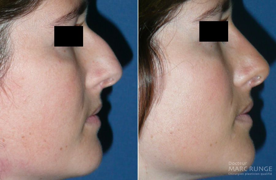 Photos des résultats de la chirurgie du nez - Dr Runge - Paris et Beauvais (Oise)