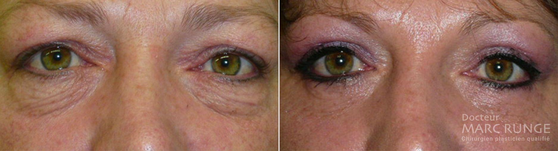 Photo de la paupière avant et après l'opération, réalisée par Dr Runge, médecin et chirurgien esthétique à Paris et Beauvais (Oise)