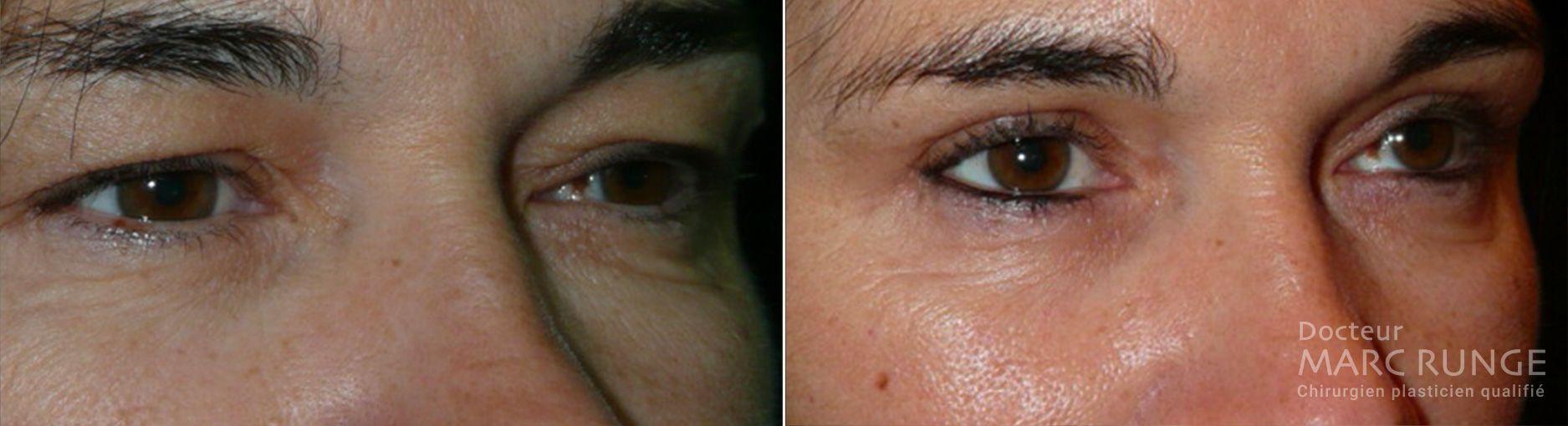 Photo d'avant et d'après la blépharoplastie réalisée par Dr Runge, médecin et chirurgien esthétique à Paris et Beauvais (Oise)