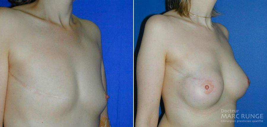 Reconstruction mammaire, photos avant et après par Dr Runge, chirurgien esthétique à Paris et Beauvais (Oise)