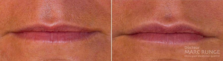 Photos avant/après injection d'acide hyaluronique pour repulper les lèvres par le Dr Runge
