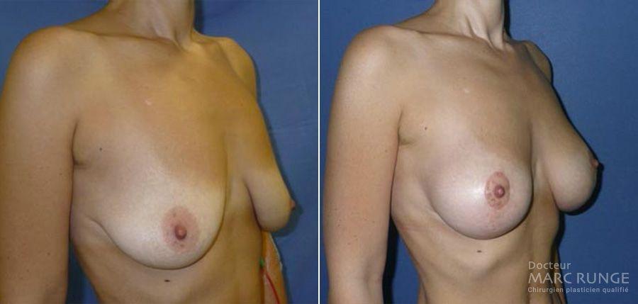 Résultats du lifting des seins en Photos avant/après, une opération réalisée à Paris par Dr Runge, chirurgien et médecin esthétique