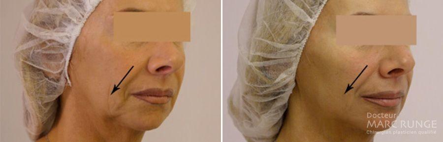 Photos avant/après pose de fils tenseurs pour rajeunir le visage - Dr Runge - Paris et Beauvais