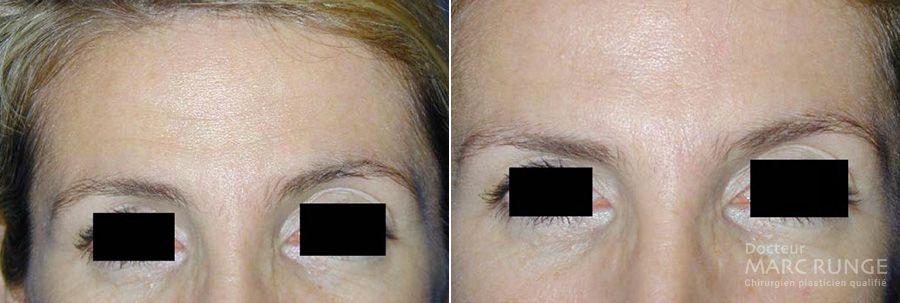 Photo du visage avant/après injection de Botox par le Dr Runge, médecin esthétique à Paris et Beauvais (Oise)