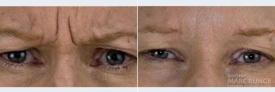 Photos du visage avant et après injection de Botox, Dr Runge, médecin esthétique à Paris et Beauvais (Oise)