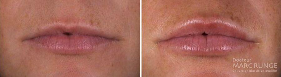 Photos injection d'acide hyaluronique lèvres avant/après, Dr Runge, médecin esthétique à Paris et Beauvais