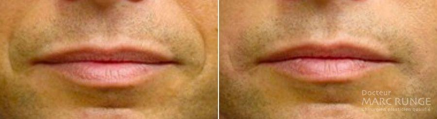 Photos sillons naso-géniens avant et après injection d'acide hyaluronique, Dr Runge, Paris et Beauvais