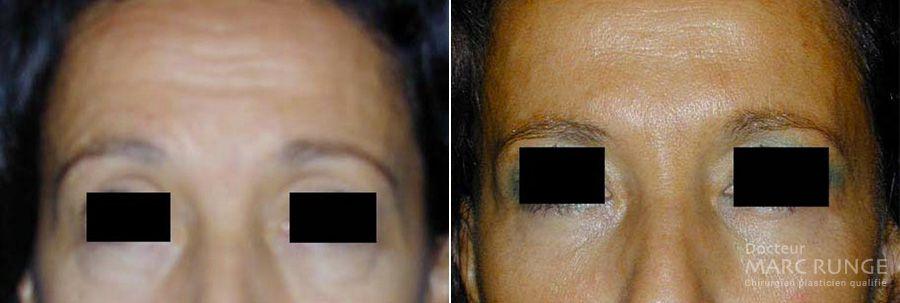 Photos résultat des injections Botox, Dr Runge, médecin esthétique à Paris et Beauvais (Oise)