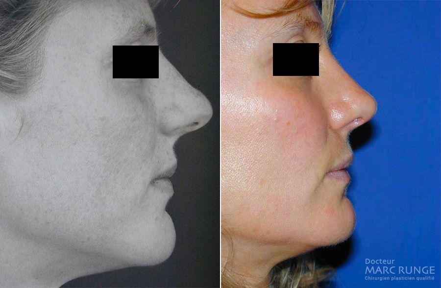 Photos avant/après rhinoplastie (chirurgie du nez) - Dr Runge - Chirurgien esthétique à Paris et Beauvais