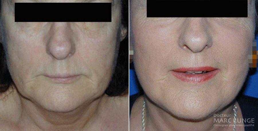 Photo du visage avant et près Le Lifting réalisé par le Dr Runge, chirurgien et Médecin Esthétique Paris et Beauvais (Oise)