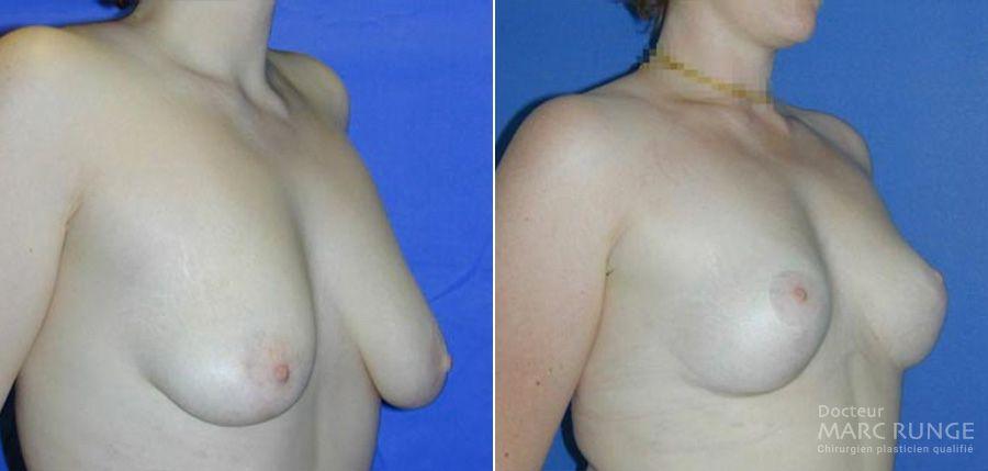 Résultats du lifting des seins (ptose mammaire) en photos, l'opération est réalisée à Paris par le Dr Runge, chirurgien et médecin esthétique
