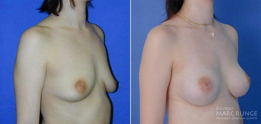 Résultats du lifting des seins, Photos avant/après par Dr Runge, chirurgien et médecin esthétique Paris et Beauvais (Oise)