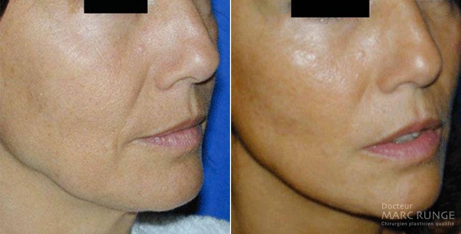 Photo avant et après d'un Lifting du visage - Dr Runge, chirurgien et Médecin Esthétique à Paris et Beauvais (Oise)