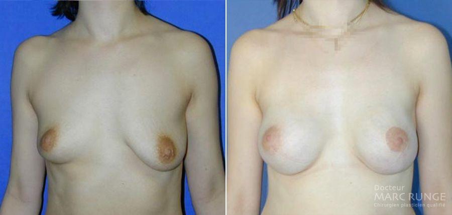 Lifting des seins à Paris (Ptose mammaire) : les photos d'avant/après l'opération - Dr Runge