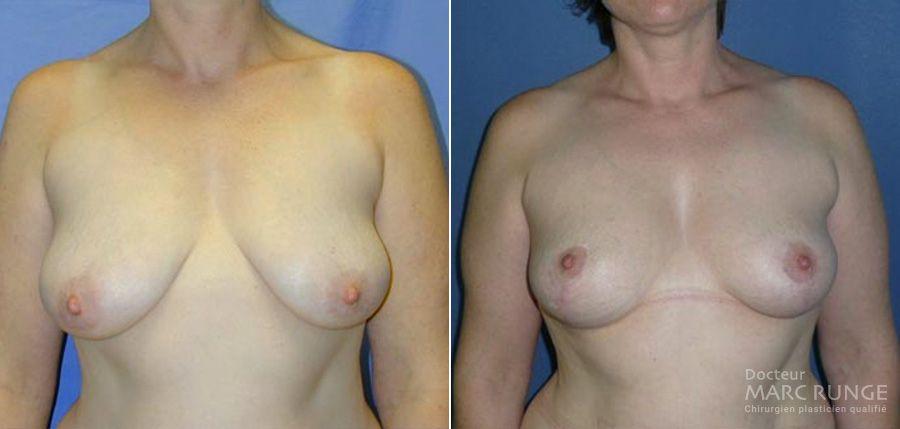 Lifting des seins (ptose mammaire) à Paris, photos avant/après par Dr Runge, chirurgien et médecin esthétique