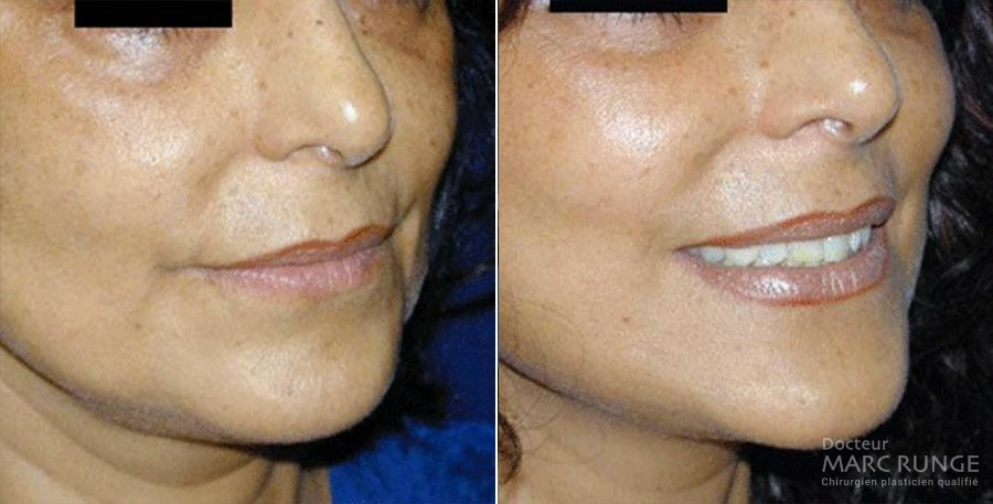 Photos Lifting du visage avant/après, opération réalisée par Dr Runge, chirurgien et médecin esthétique à Paris et Beauvais (Oise)