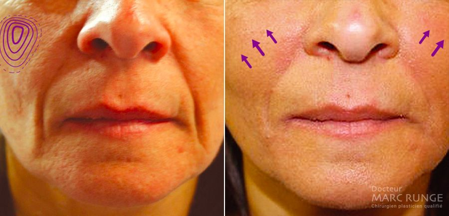 Lipofilling visage photos avant et après par Docteur Runge, médecin et chirurgien esthétique à Paris et Beauvais (Oise)