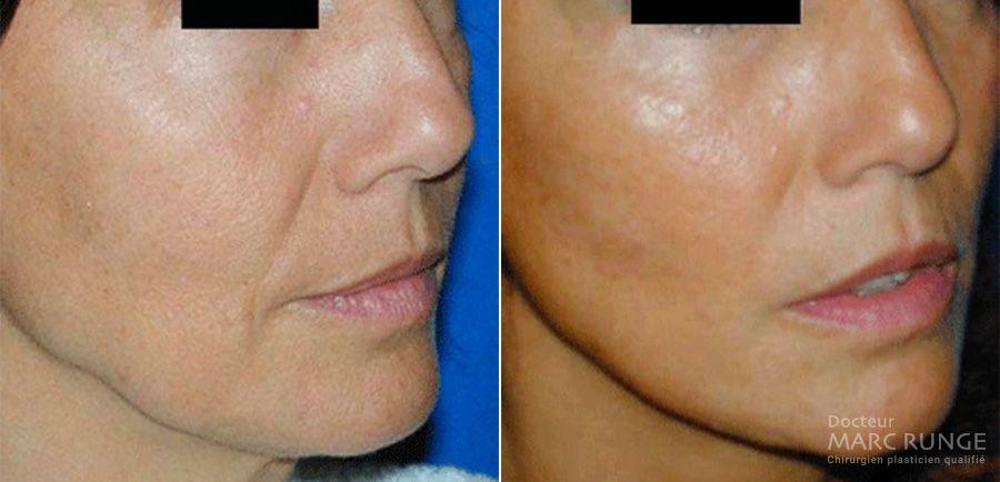Photo avant et après d'un Lipofilling du visage - Dr Runge, chirurgien et Médecin Esthétique à Paris et Beauvais (Oise)
