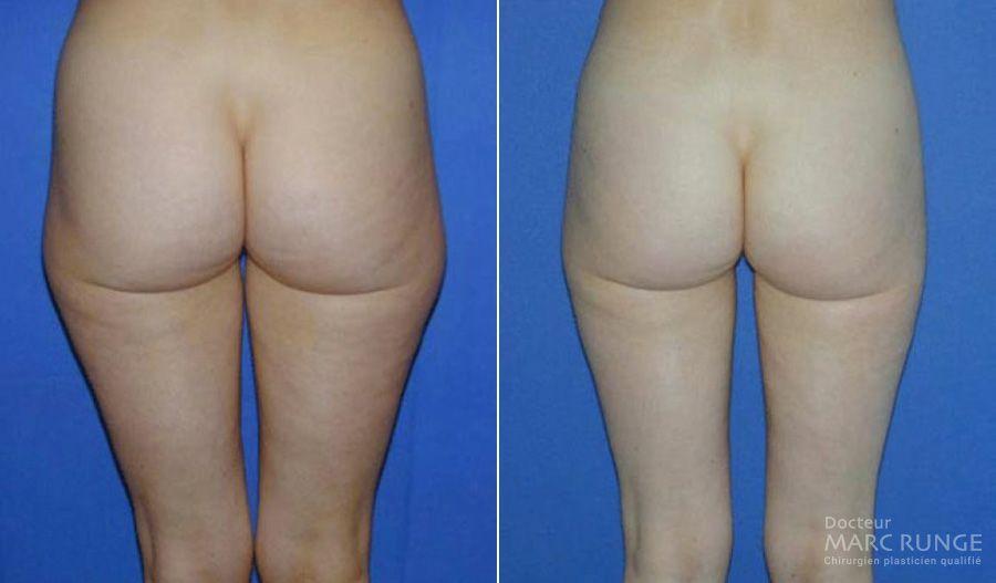 Dr Runge, photos de la liposuccion des hanches avant et après l'opération - Paris et Beauvais (Oise)