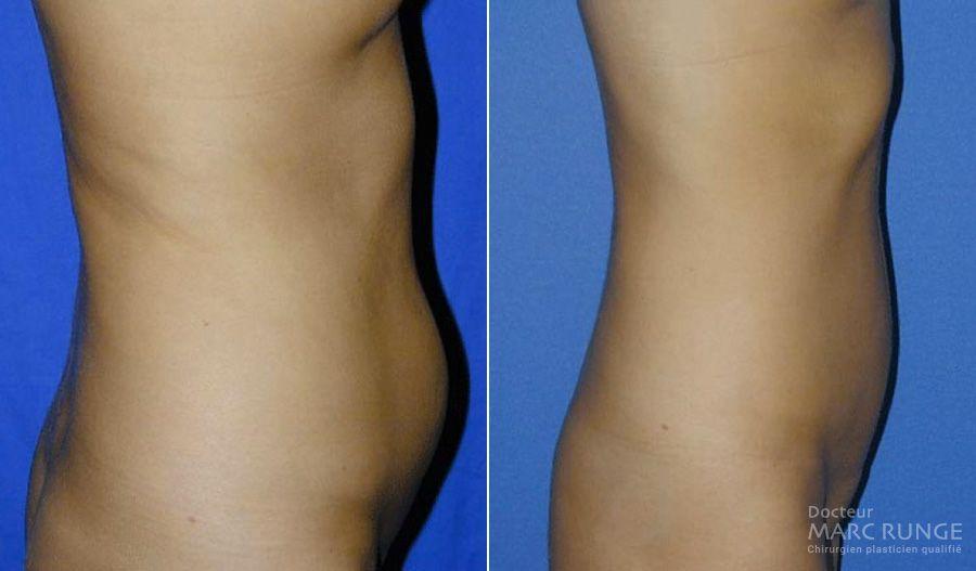 Photos de la Liposuccion du ventre, photos avant/après par Dr Runge à Paris et Beauvais (Oise)