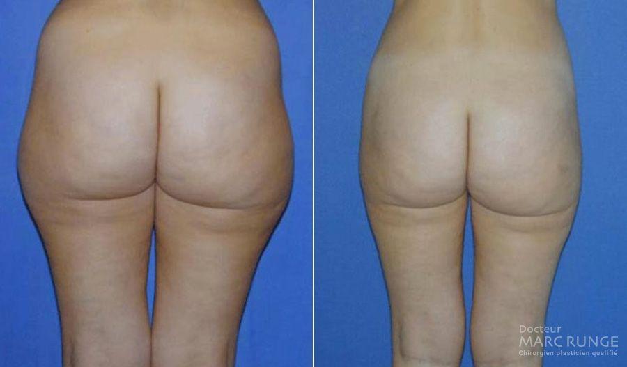 Liposuccion des hanches en photos avant et après, par Dr Runge, chirurgien esthétique à Paris et Beauvais (Oise)