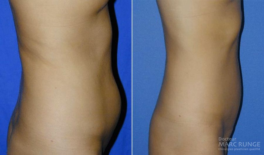 Photos de la Lipoapiration du ventre, photos avant/après par Dr Runge à Paris et Beauvais (Oise)