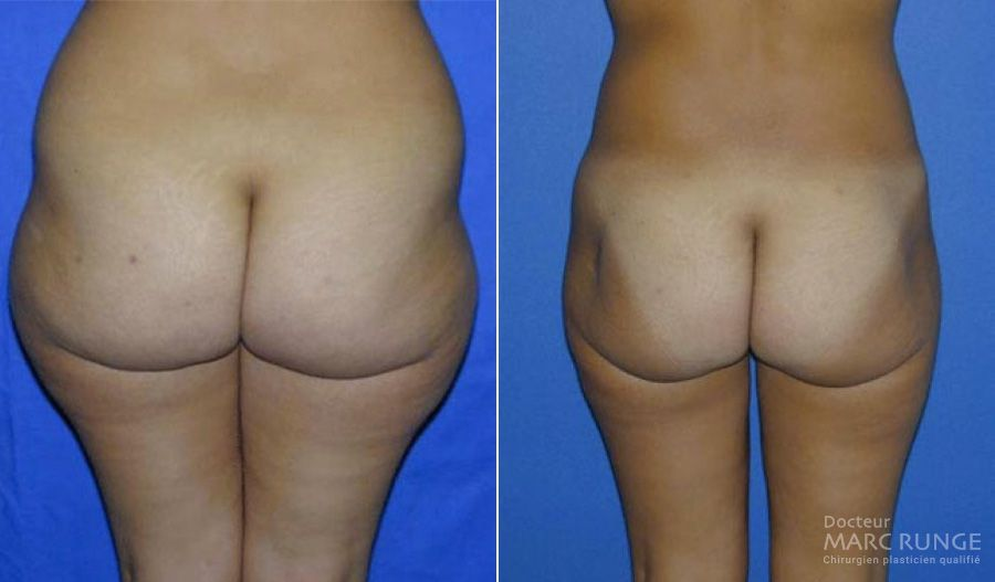 Photos de la Liposuccion des fesses avant et après l'opération par Dr Runge, chirurgien esthétique à Paris et Beauvais (Oise)