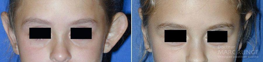 Dr Runge, photos de la chirurgie des oreilles décollées avant et après l'opération (Paris et Beauvais)
