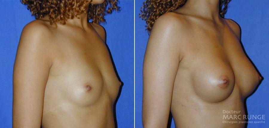 Photo des seins avant et après l'augmentation mammaire réalisée par le Docteur Runge à Paris et Beauvais (Oise)