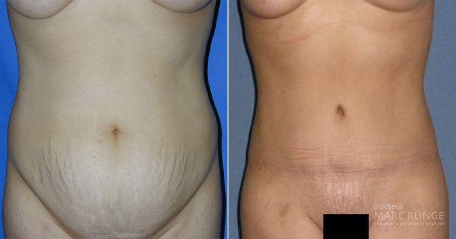 Abdominoplastie Paris, photos avant et après par Dr Runge, spécialiste de la plastie abdominale et de la chirurgie esthétique