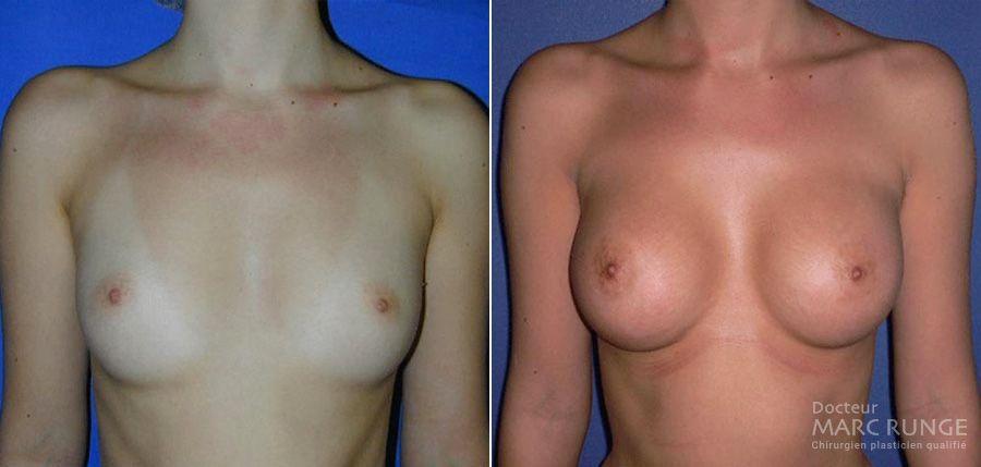 Photo seins avant/après augmentation mammaire réalisée par le Dr Runge, chirurgien esthétique à Paris et Beauvais (Oise)