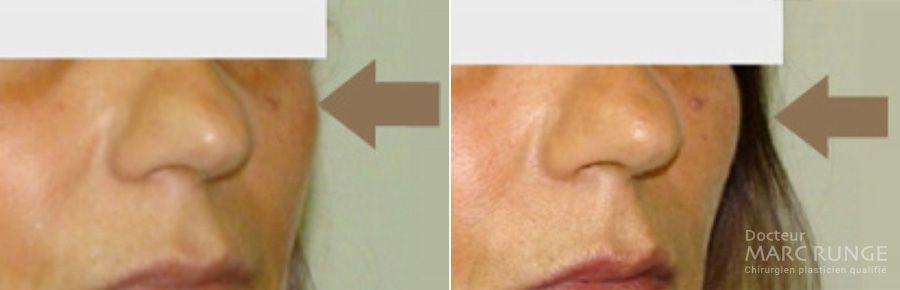 Photo avant/après, résultats fils tenseurs : une technique efficace du lifting visage pratiquée à Paris par Dr Runge