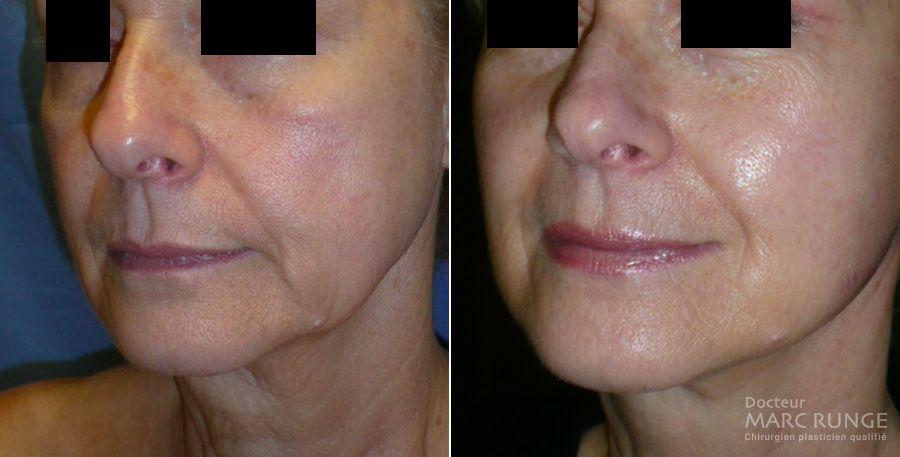 Photos visage avant/après un lifting cervico-facial par le Dr Runge, chirurgien esthétique à Paris et Beauvais