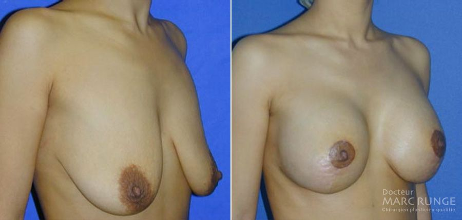 Dr Runge, chirurgien et médecin esthétique à Paris, spécialiste du Lifting des seins (Ptose mammaire) : les photos avant/après