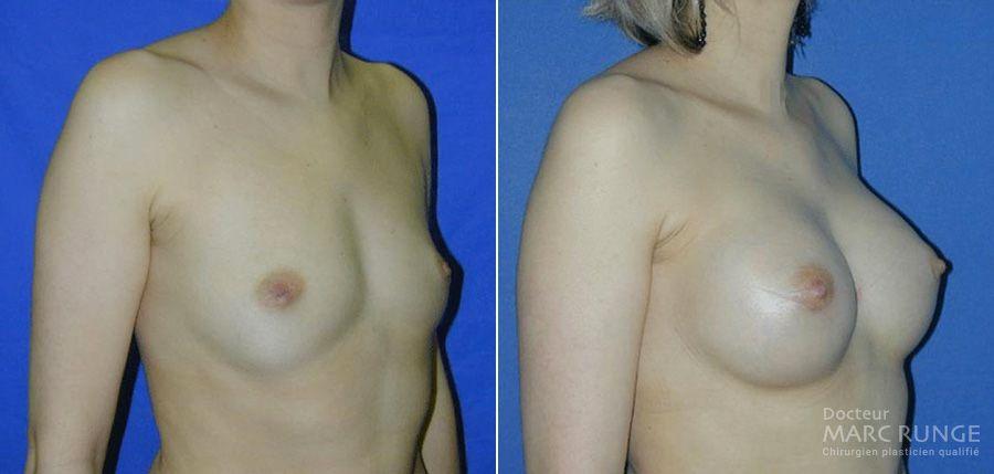 Photo seins avant et après augmentation mammaire réalisée par le Dr Runge, chirurgien esthétique à Paris et Beauvais (Oise)