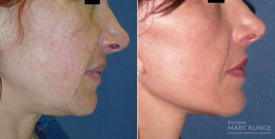 Photos avant/après traitement du relachement du visage par lifting cervico-facial - Dr Runge