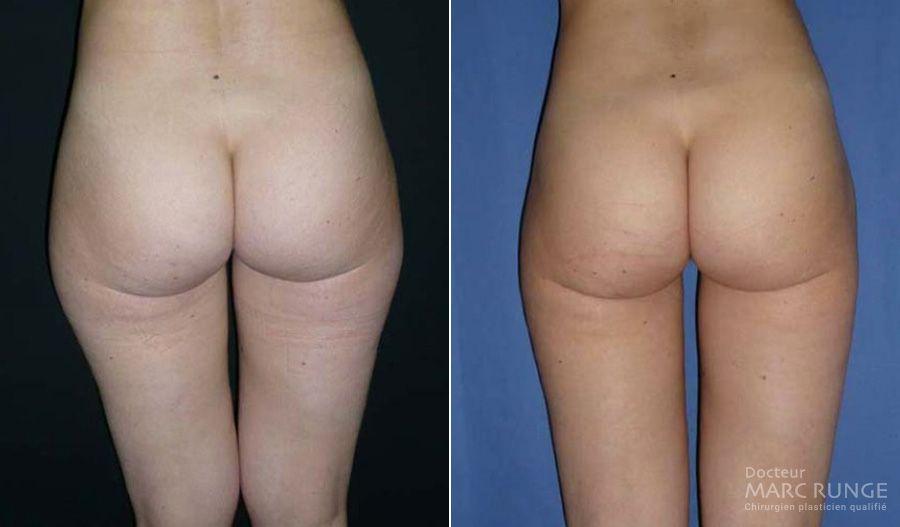 Photos de la Liposuccion des fesses avant et après la chirurgie esthétique réalisée par Dr Runge à Paris