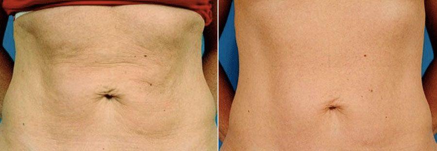 Photo rajeunissement de la peau par thermage, une technique pour traiter le relâchement cutané et la cellulite - Dr Runge, Paris et Beauvais (Oise)
