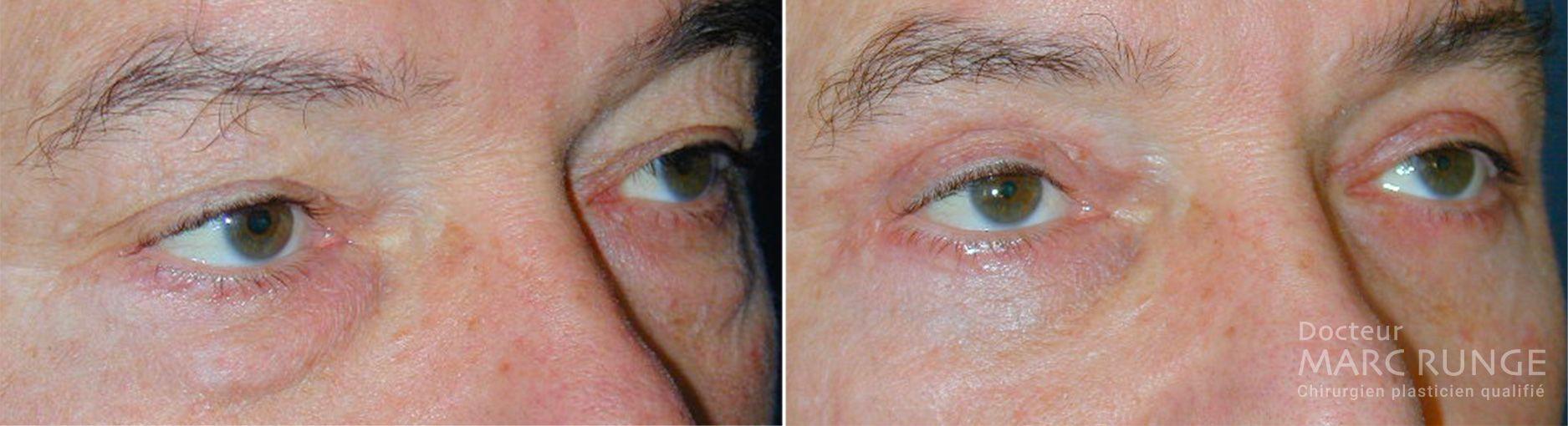 Photo de la paupière avant et après la blépharoplastie réalisée par Dr Runge, médecin et chirurgien esthétique à Paris et Beauvais (Oise)