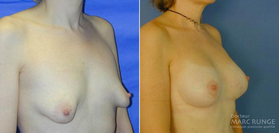 Photos du Lifting des seins avant/après, opération réalisée à Paris par Dr Runge, chirurgien et médecin esthétique