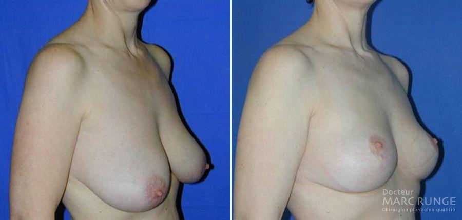 Photos avant/après du Lifting des seins (Ptose mammaire) - Dr Runge - Paris et Beauvais (Oise)