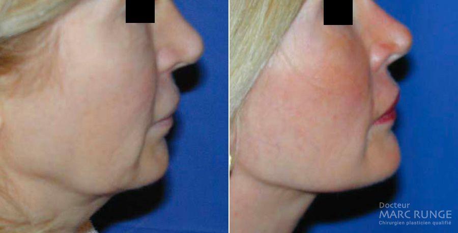 Lifting cevico facial, photos avant et après, Dr Runge, Paris et Beauvais (Oise)